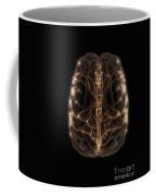 Brain With Blood Supply Coffee Mug