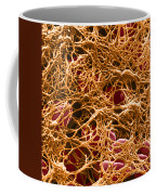 Blood Clot Sem, 3 Of 3 Coffee Mug