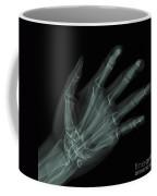 Bones Of The Hand Coffee Mug