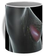 Breast Implant Coffee Mug