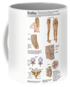 Medical Chart Showing The Signs Coffee Mug