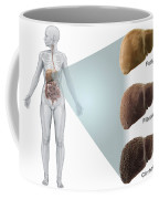 Stages Of Liver Disease Coffee Mug