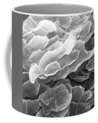 Vaginal Lining, Sem Coffee Mug