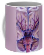 Brain With Blood Supply Coffee Mug