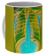 A Normal Chest X-ray Coffee Mug