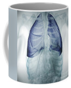 Lungs Within The Chest Coffee Mug