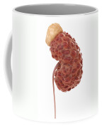 Polycystic Kidney Coffee Mug