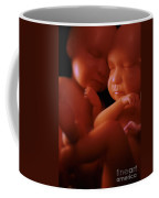 Twin Babies Coffee Mug