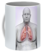 Obesity Coffee Mug