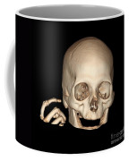 3d Ct Reconstruction Of Head And Hand Coffee Mug