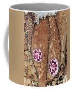 Chlamydia Infection Tem Coffee Mug