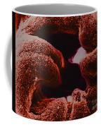 Oviduct Entrance, Sem Coffee Mug