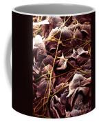 Candida And Epithelial Cells Coffee Mug