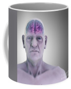 Geriatric Brain Coffee Mug