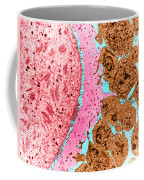 Mature Oocyte, Tem Coffee Mug