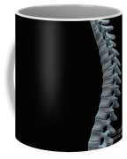 Spinal Anatomy Coffee Mug