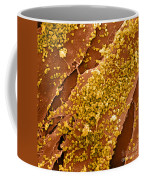 Human Skin Cell Sem Coffee Mug