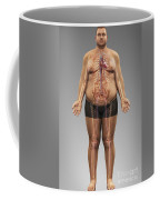Obesity Coffee Mug