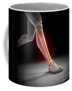 Medial Tibial Stress Syndrome Coffee Mug