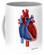 Aortic Valve Coffee Mug