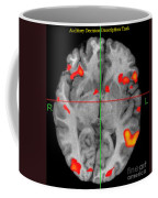 Brain Activity During Language Task, 2 Coffee Mug