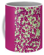 Brilliant Bunch - Photopower 1731 Coffee Mug