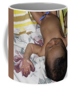 Clamp Tied To Umbilical Cord Of A 5 Day Old Indian Baby Boy Coffee Mug