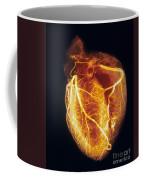 Colored Arteriogram Of Arteries Of Healthy Heart Coffee Mug