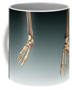 Conceptual Image Of Bones In Human Legs Coffee Mug