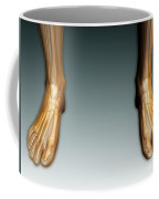Conceptual Image Of Human Legs And Feet Coffee Mug