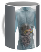 Distal Pancreatectomy Coffee Mug