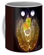 Enhanced Mri Clival Chordoma 6 Coffee Mug