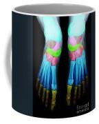 Foot X-ray Coffee Mug