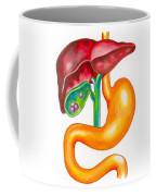 Gallstone Coffee Mug