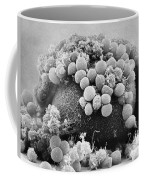 Hamster Egg And Cumulus Cells Sem Coffee Mug