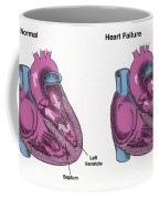 Healthy Heart Vs. Heart Failure Coffee Mug