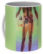 Hip Replacement Coffee Mug