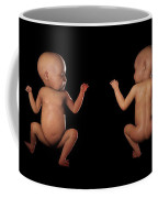 Infant Anatomy Coffee Mug