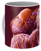 Kidney Glomerulus, Sem Coffee Mug
