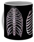 Multiple View Of The Rib Cage Coffee Mug
