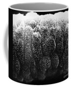 Sertoli Cells From The Testis Sem Coffee Mug