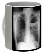 Severe Bullous Emphysema Coffee Mug
