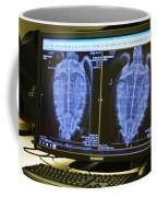 Turtle X-ray Coffee Mug