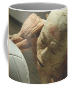 Extreme Sports Volleyball Player From Bodies Exhibit Coffee Mug