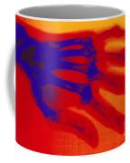 X-ray Of Hand With Rheumatoid Arthritis Coffee Mug