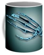 X-ray View Of Bones In Human Hand Coffee Mug