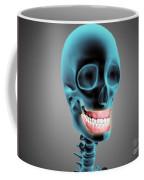 X-ray View Of Human Skeleton Showing Coffee Mug by Stocktrek Images