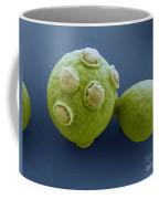 Yeast Cells Sem Coffee Mug