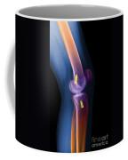 Acl Knee Repair X-ray Coffee Mug