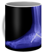 Ankle Fracture Coffee Mug